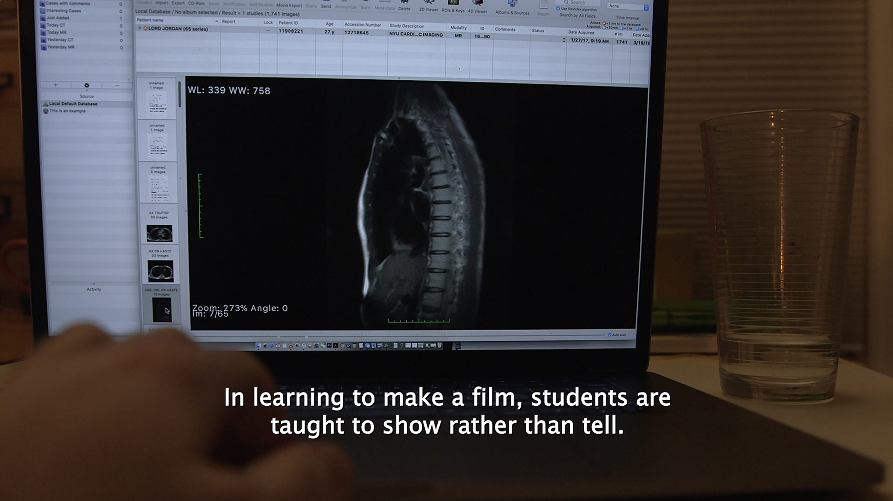 """The inside of a body, including a spine and other organs, appears on a laptop screen. A white person's hand reaches toward the laptop's keyboard. On top of the hand, a caption reads: """"In learning to make a film, students are taught to show rather than tell."""""""